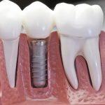 Основные методы имплантации зубов за границей